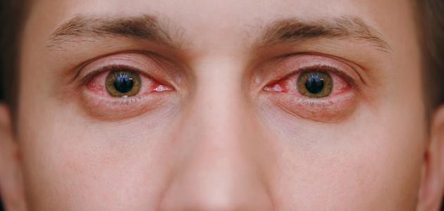 طرق علاج حساسية العين واحمرارها - سطور