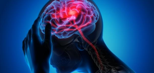 أعراض الجلطة الدماغية عند الشباب