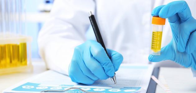 علاج زلال البول