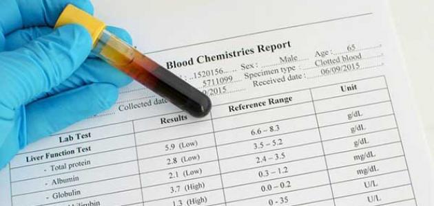 علاج ارتفاع إنزيمات القلب بالأعشاب: حقيقة أم خرافة قد تضرك؟