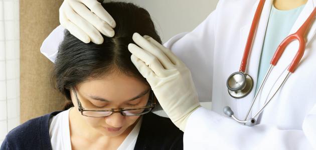 أضرار قشرة الشعر