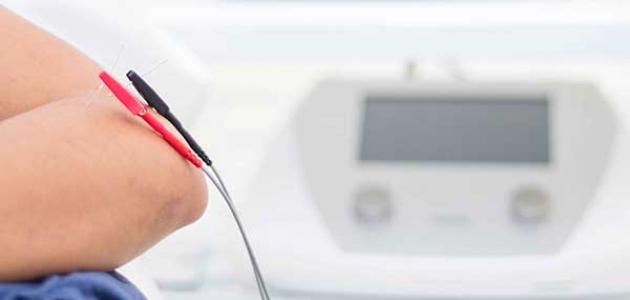 أضرار العلاج الطبيعي بالكهرباء
