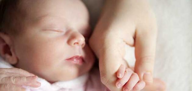 فتق السرة عند الرضع