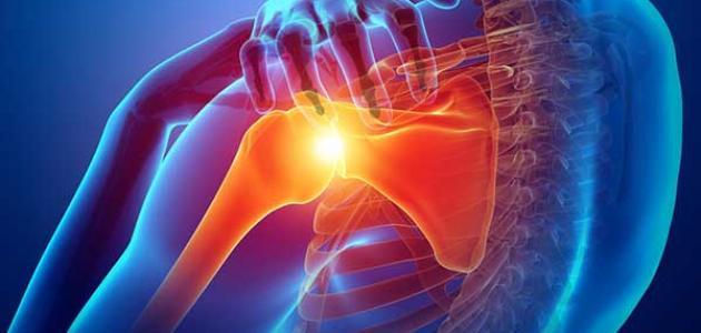 أسباب التهاب أوتار الكتف وطرق علاجها
