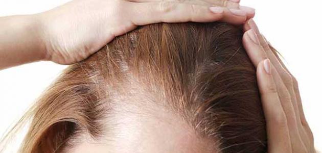 ما هو ترقق الشعر