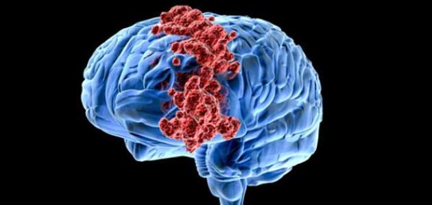 تشخيص سرطان الدماغ
