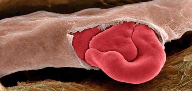 الوقاية من تكسر الدم