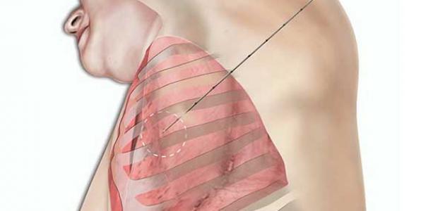 أضرار خزعة الرئة