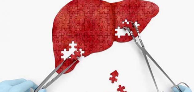 مخاطر خزعة الكبد