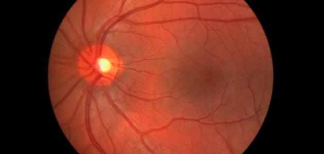 علاج تمزق شبكية العين