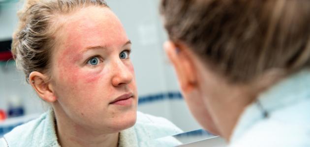 معلومات عن إكزيما الوجه