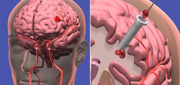 أعراض نزيف الدماغ الخفيف