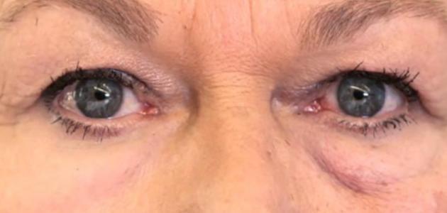 بحث حول العين