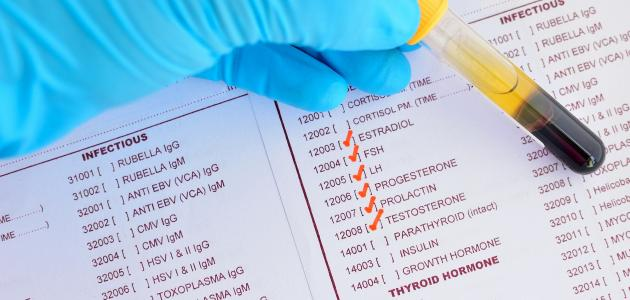مسحة تحفيز استبداد كيفية تحليل الهرمونات للنساء Sjvbca Org