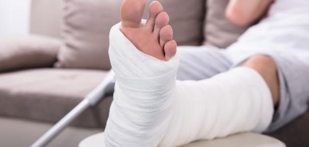 العلاج الطبيعي للقدم بعد الجبس