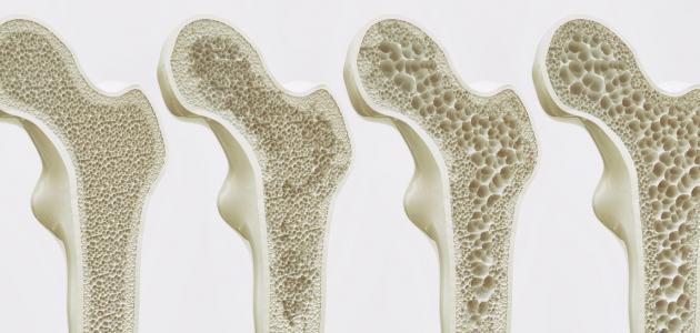 أعراض هشاشة العظام عند المراهقين