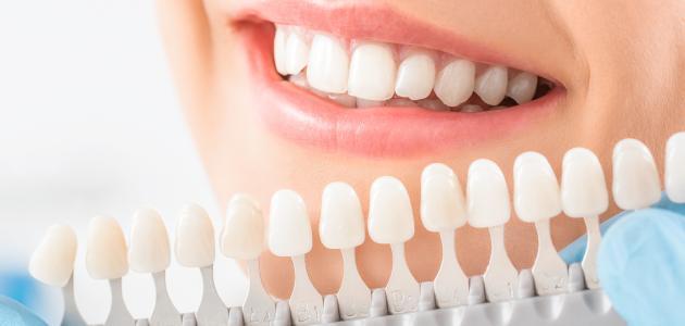 أضرار قشور الأسنان التجميلية