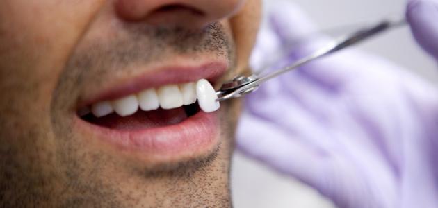 القشور الخزفية للأسنان