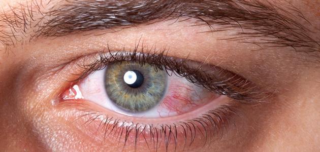 هل يسبب الصيام جفافًا في العيون