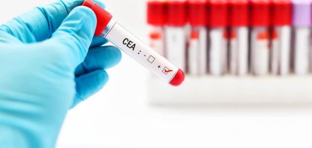 فحص المستضد السرطاني المضغي: أسبابه وكيفية الإجراء وقراءة النتيجة