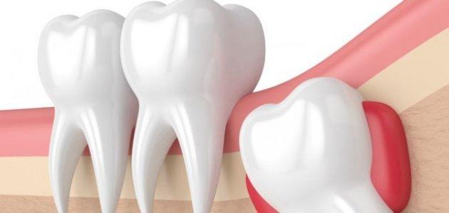 الأسنان: موقعها، أجزاؤها، وظائفها، أمراضها، هل يمكن البقاء بدونها؟