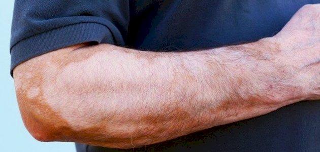 أسباب البقع البيضاء على الجلد هل البهاق وحده السبب سطور