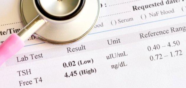 هل هناك علاقة بين تحليل TSH والحمل؟