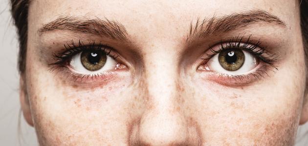 هربس العين: الأسباب والأعراض وطرق العلاج