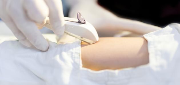كيف تعمل شريحة منع الحمل؟ وهل تسبب زيادة في الوزن؟